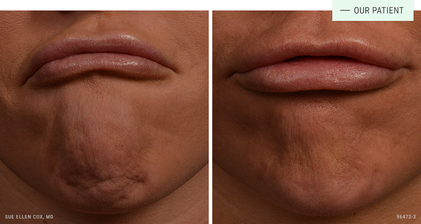 Botox, Dysport, Xeomin and Jeuveau   Aesthetic Solutions