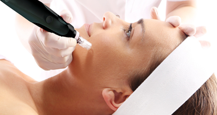 Microneedling treatment on patient