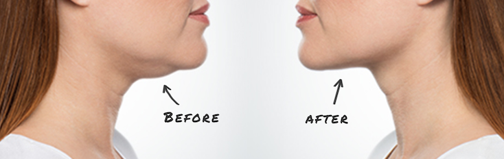 Body Contouring under the chin, before and after