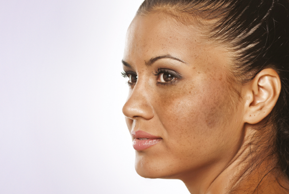 Woman with melasma